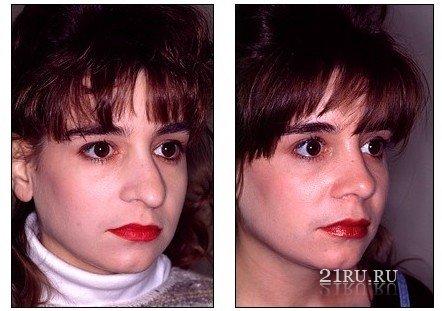 Операция на носу: сплав творчества и техники исполнения